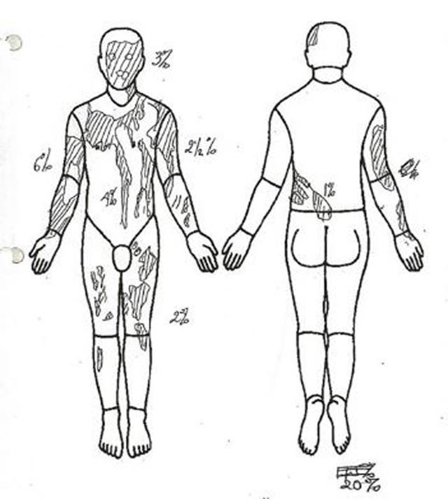 A body map which was shown in the court case (Avon and Somerset Police/PA)