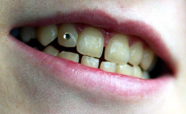 Rebecca Read Tooth Gem