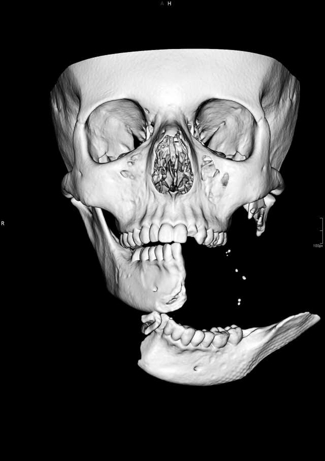 CT Scan 3D Image of injuries to Emily Eccles