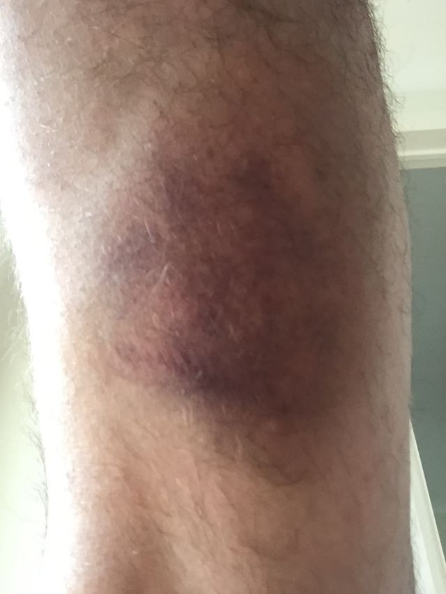 Bruising on the legs of Craig Skillicorn