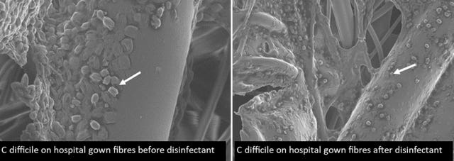 C Diff on hospital gowns before and after disinfectant