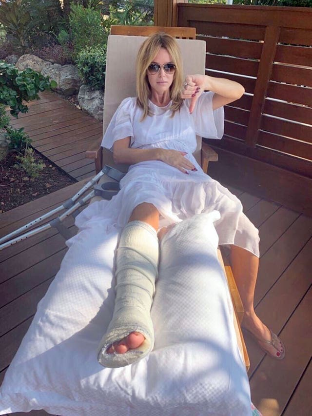 Amanda Holden breaks leg