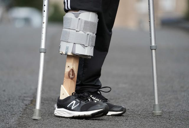 Amputee Steve Watson wearing the prosthetic leg his wife Atchari made for him from items she found in the shed. Atchari Watson, 46, stepped in to action to help her husband Steve get around their house in Shotley Bridge, County Durham, after they were told he would have to wait months for one on the NHS due to the coronavirus crisis