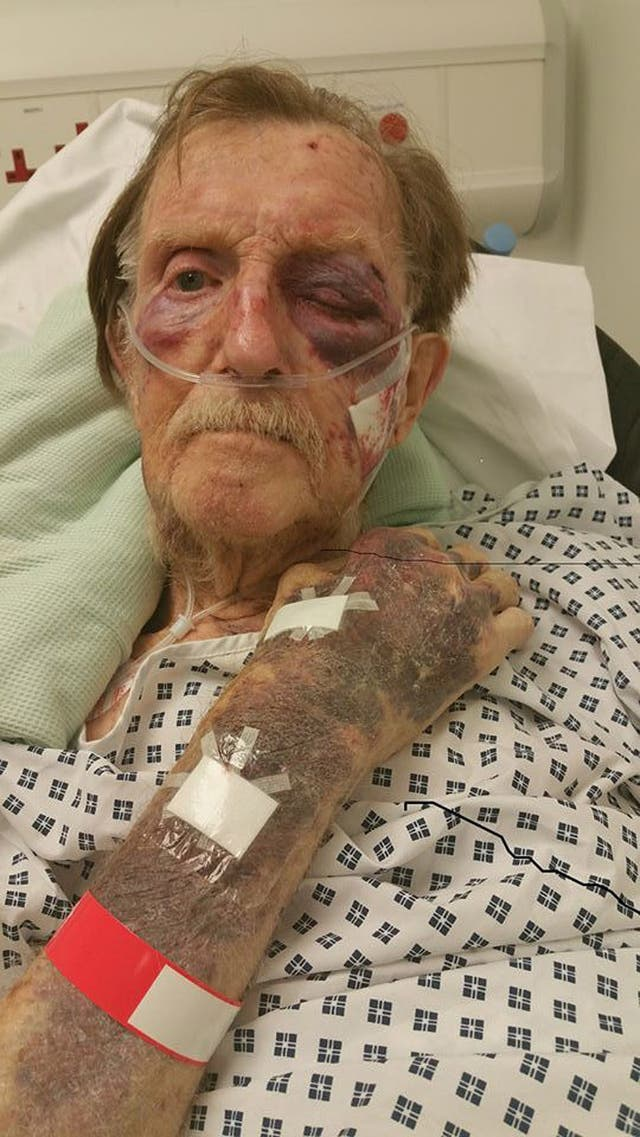 Arthur Gumbley died after suffering a badly bruised face and body when he was robbed in his own home on November 21 (Staffordshire Police/PA)