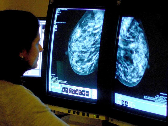 Breast scan